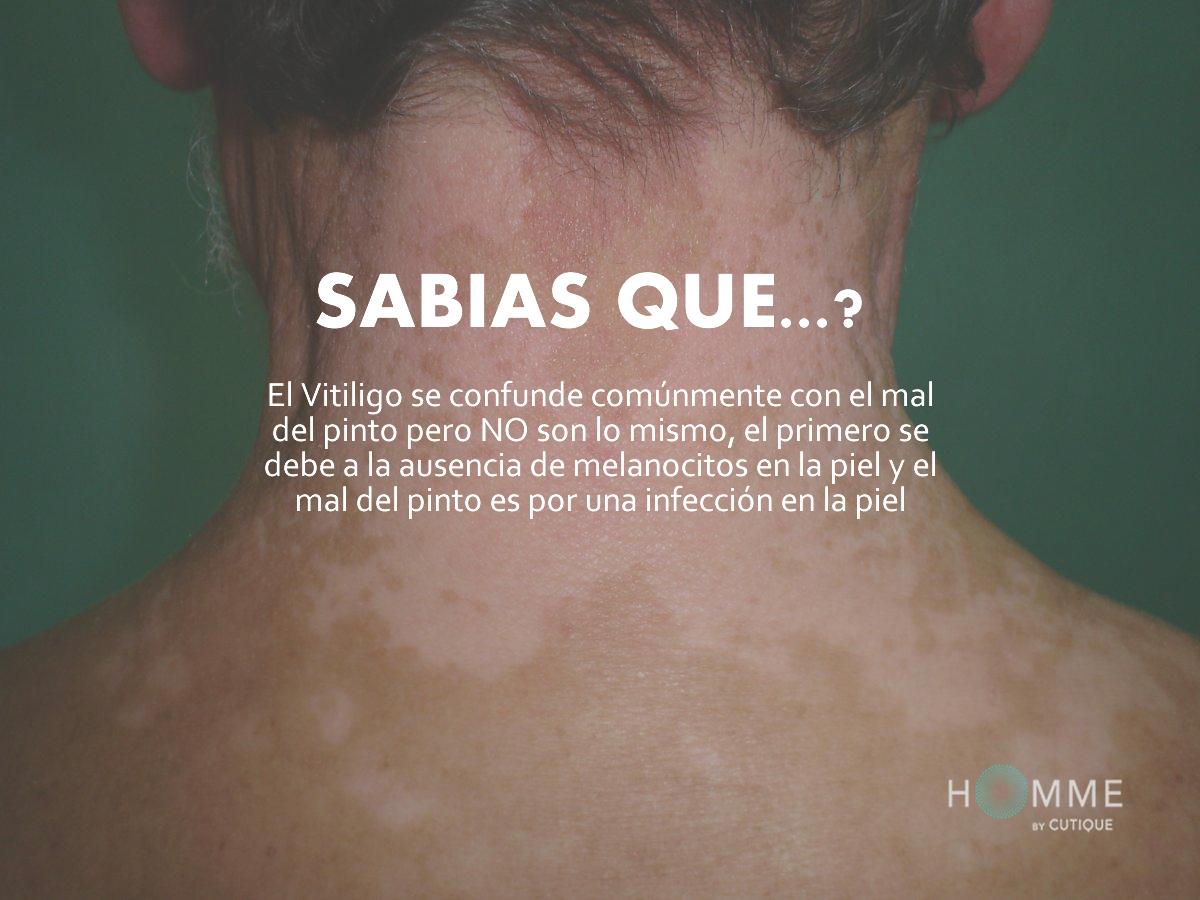 h_06_vitiligo.fw